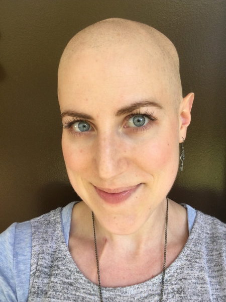 Emily Arcuri after losing her hair to chemo